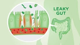 Holistic Healing for Leaky Gut